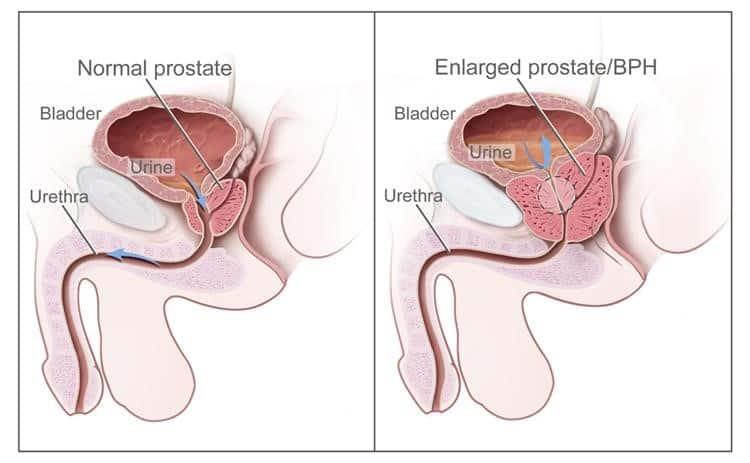 il cancro alla prostata può influenzare la respirazione